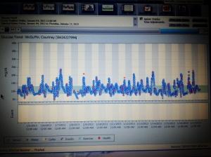 Dexcom Graph